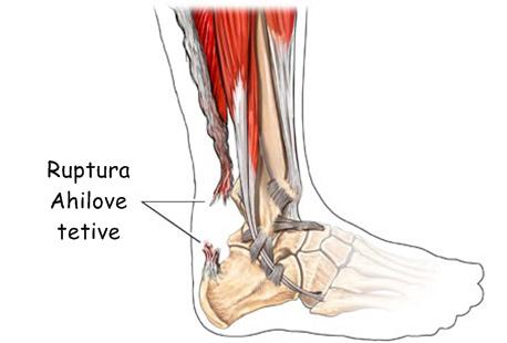 Ruptura Ahilove tetive – mehanizam ozljede i tretman